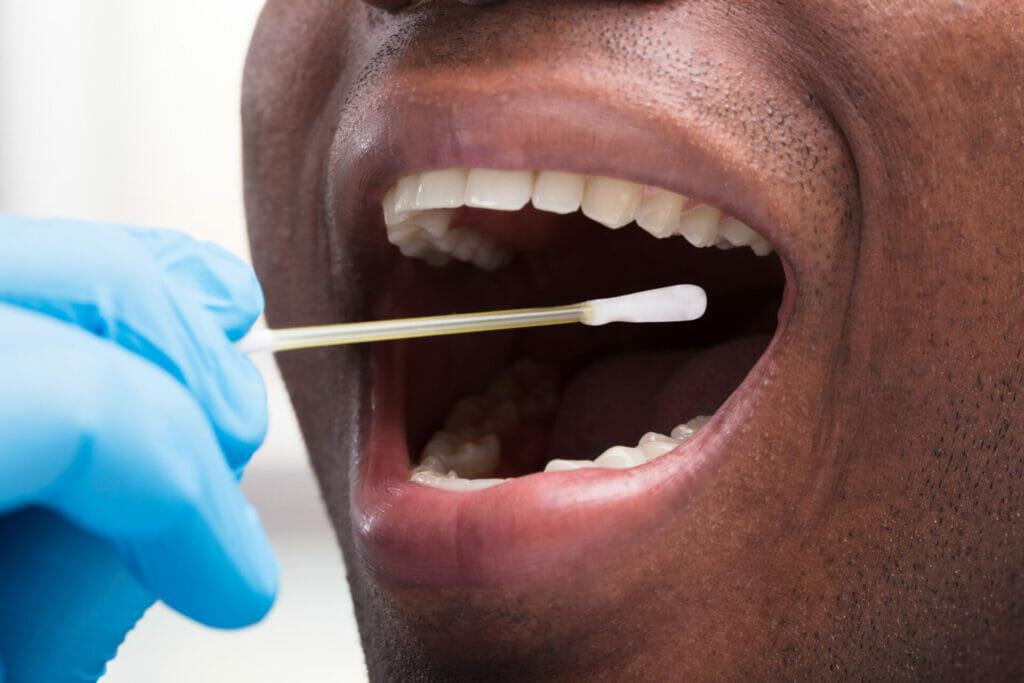 Réalisation d'un test salivaire pour dépister le cannabis